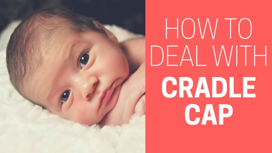 how to get rid of cradle cap in newborns